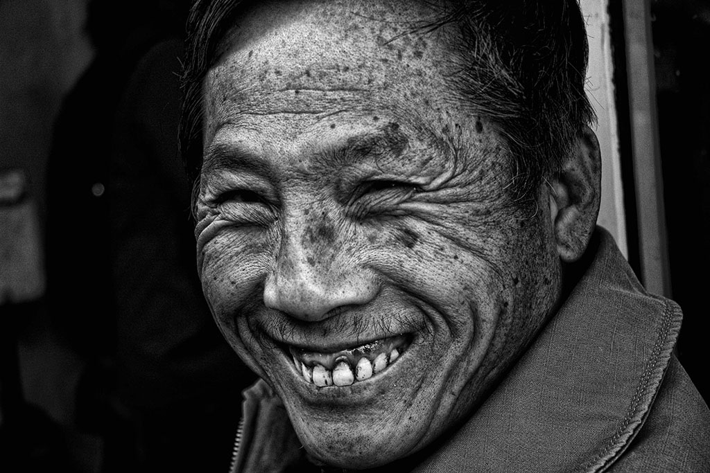 (c)JeresyStyle_Photography_teeth4_bw_MG_1022