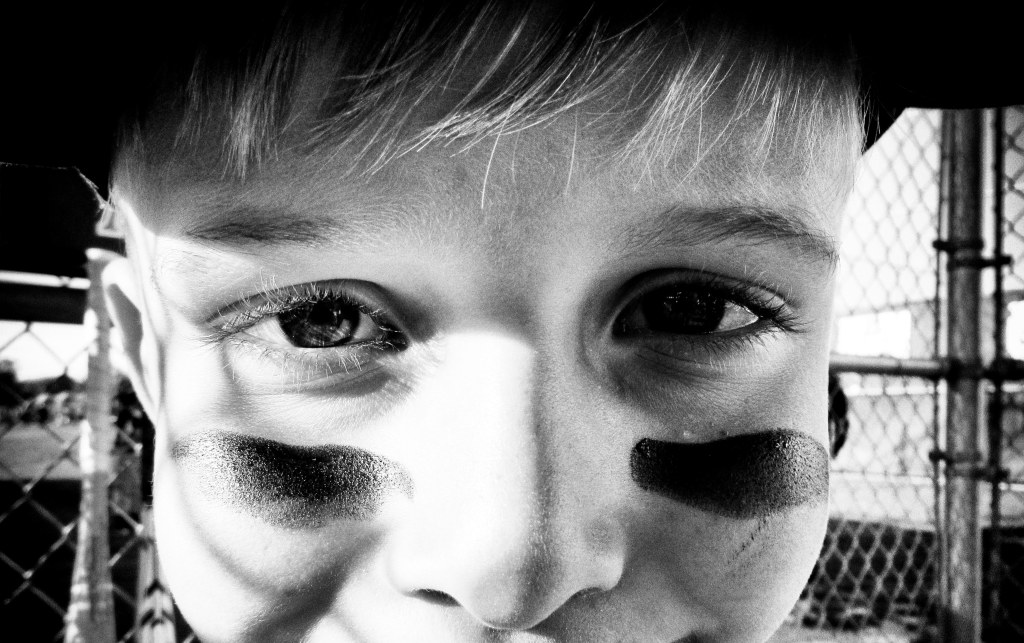 Chase_eye black_crop_bw_041717_IMG_4186